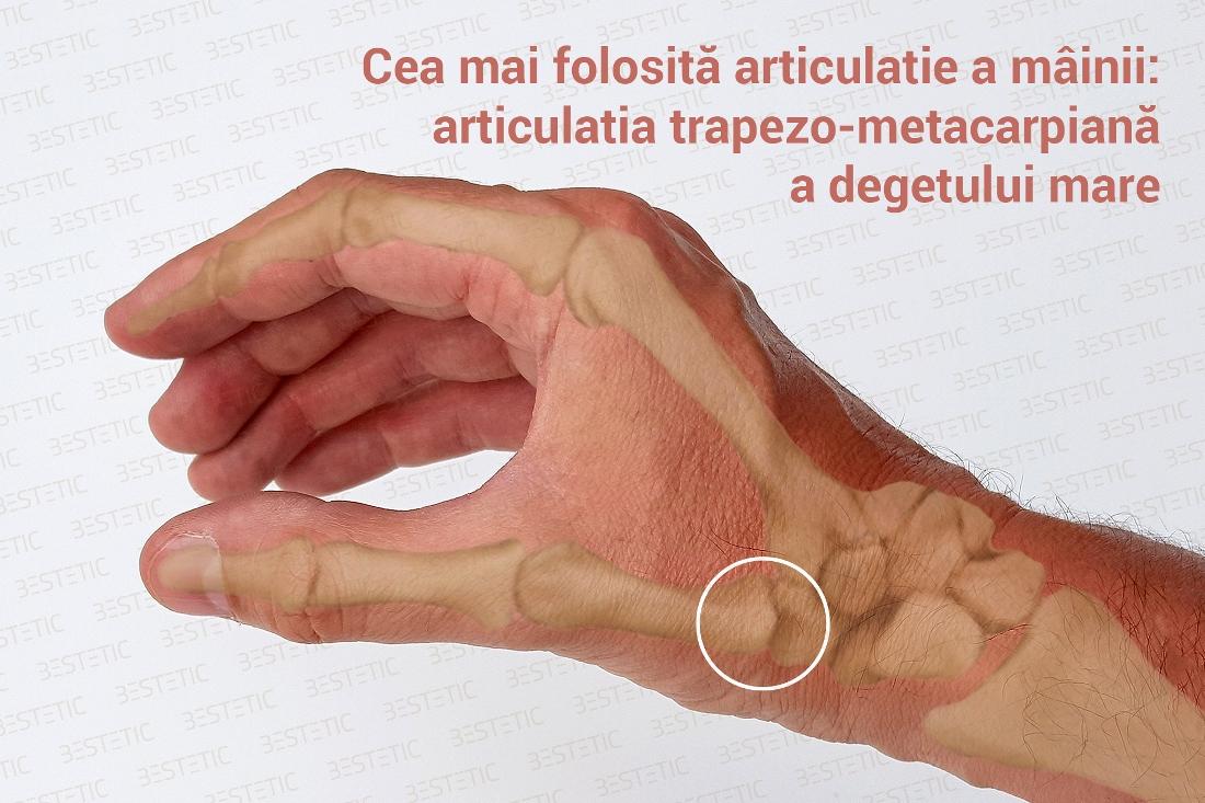 Artrita degenerativa a articulatiilor mainii – Artroza