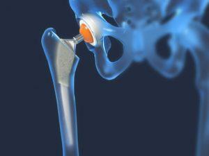 Terapie cu nămol pentru artroza articulației șoldului, Formular de căutare