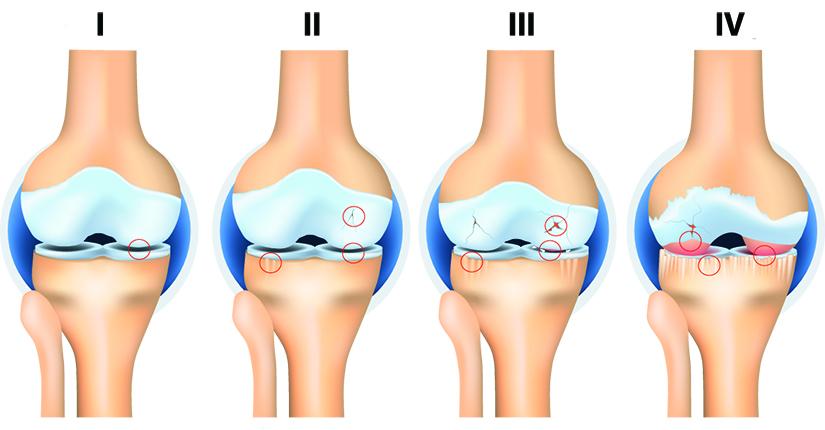 Artroza simptomelor și plângerilor genunchiului, Navigare principală