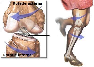 ruperea ligamentului lateral intern al tratamentului articulației genunchiului crema pentru dureri articulare