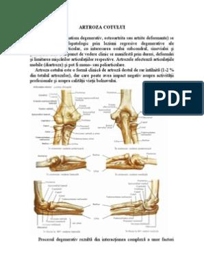 Cum pot fi diminuate durerile provocate de artroză, Artroza cotului. cum să tratezi
