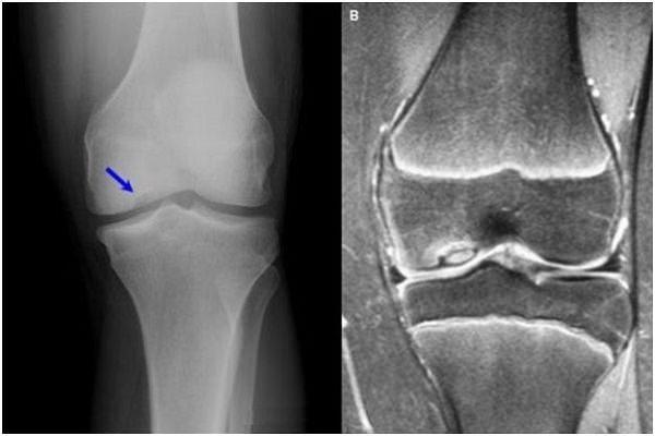 tratamentul genunchiului cu fermatron artroza gimnasticii de tratament a articulațiilor genunchiului