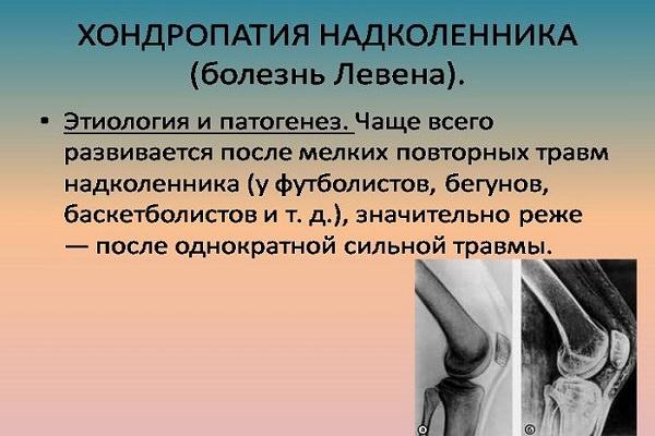 tratamentul osteoartrozei articulațiilor mici ale picioarelor