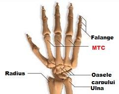 Artrita degetului mare, Luxația articulației tratamentului degetului mijlociu