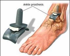 Epifizioliza tratamentului articulației gleznei. Coxartroza