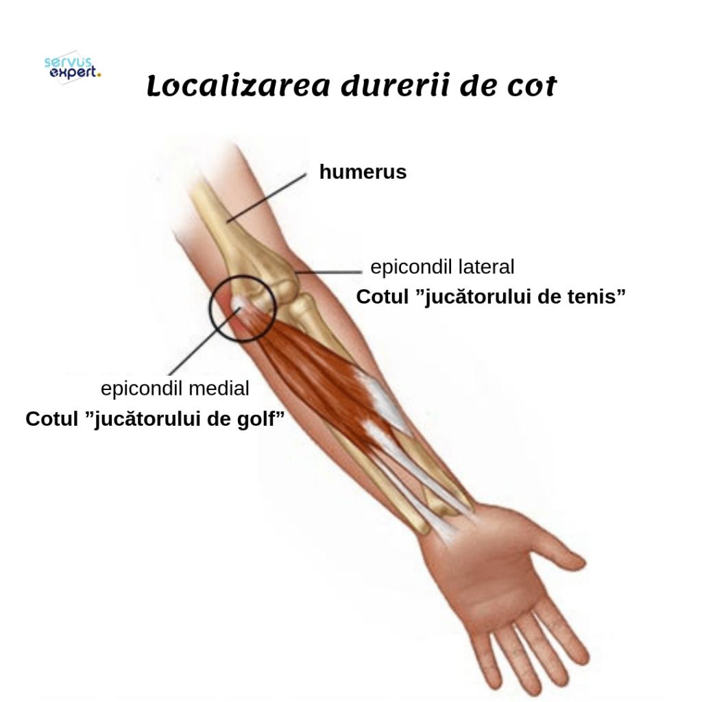 cartilajul la cot doare durere în osul articulației umărului
