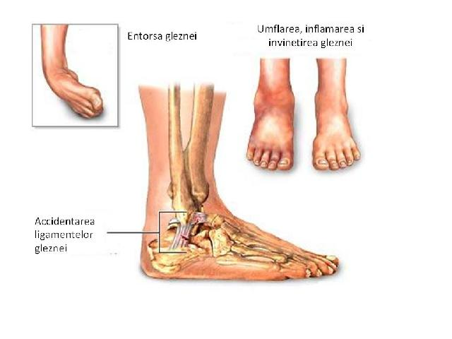 ce înseamnă durerea de genunchi