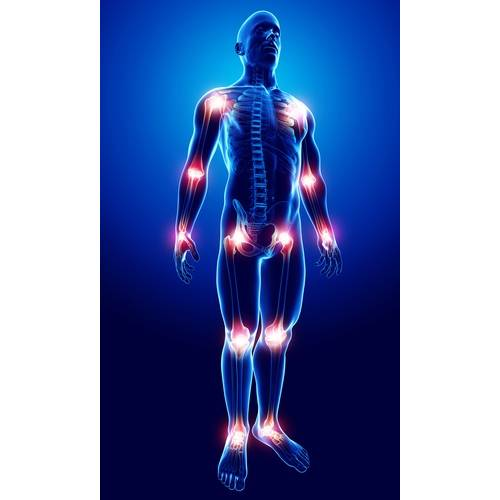 dureri articulare cauzate de infecție