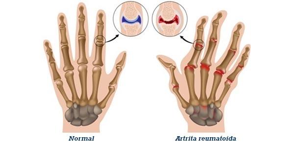 artrita reumatoidă osteochondroza toracică