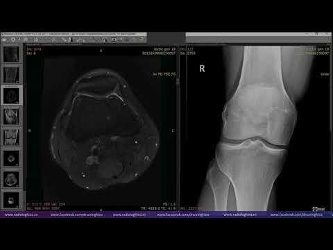 Durere de osteocondroză la nivelul articulațiilor umărului - You might also be interested in:
