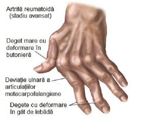 exacerbarea artritei mâinilor