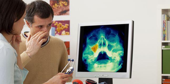 Simptomele sinuzite articulare și tratament Virozele respiratorii