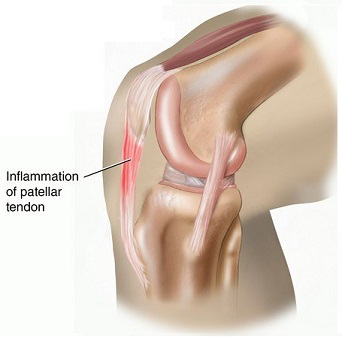 cum să trateze tendoanele genunchiului umflarea articulației gleznei pe un picior