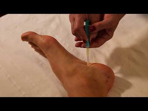 tratament cu articulațiile călcâiului durere în articulația genunchiului și mușchii