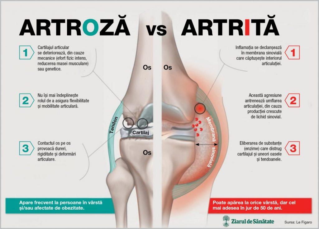 unde se tratează artrita și artroza