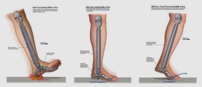 ce să faci dacă articulațiile doare după alergare