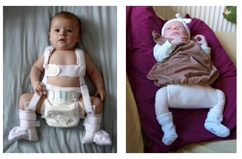 Displazia de șold la bebeluși - cauze și tratament - championsforlife.ro