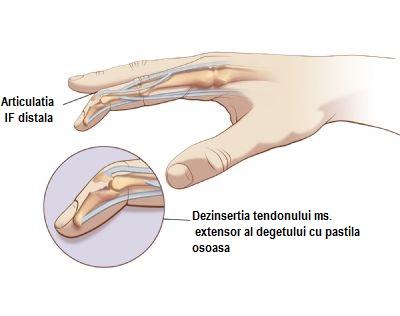 bump pe articulația unui tratament deget