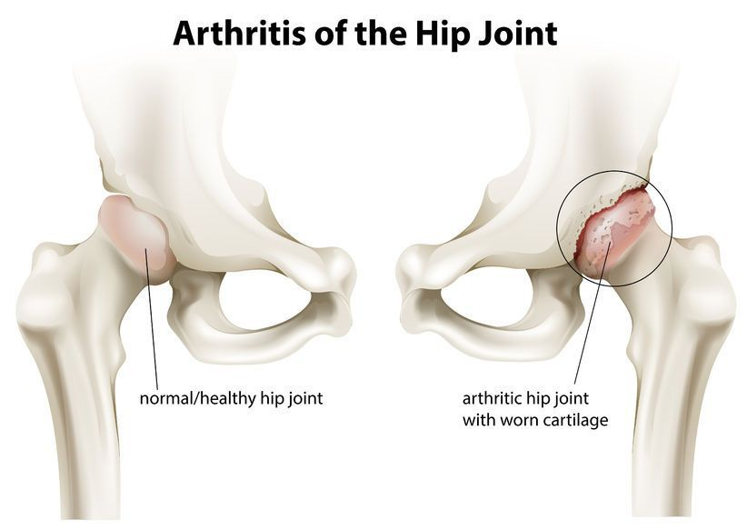 cum să ajute cu artroza articulației șoldului