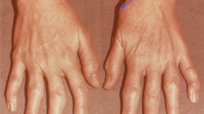 inflamație acută a articulației degetului mare balsamuri articulare Preț
