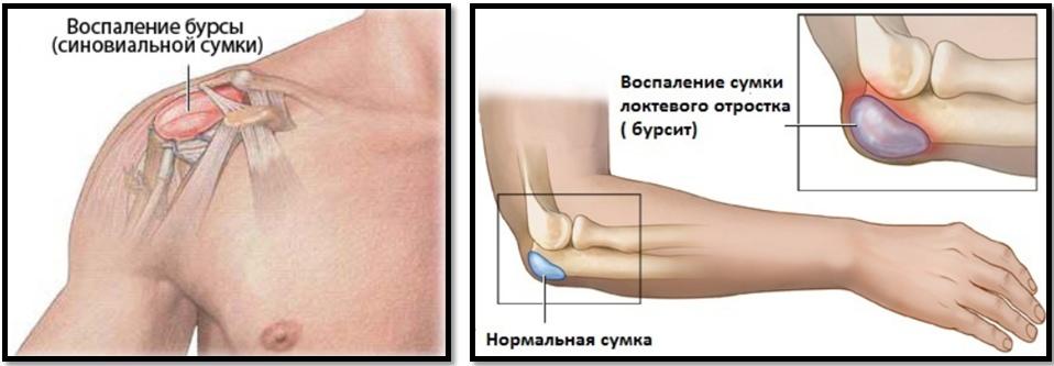 ce să iau dacă rănesc articulațiile picioarelor