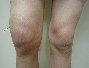 boli traumatice ale genunchiului