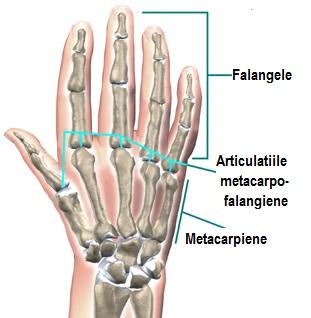 artrita articulațiilor interfalangiene ale piciorului