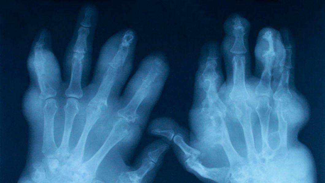 artrita și artroza care este diferența de tratament
