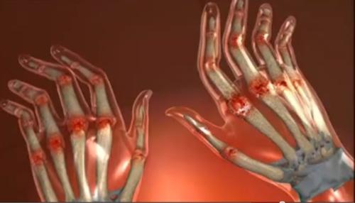 poliartrita articulațiilor infecțioase decât a trata