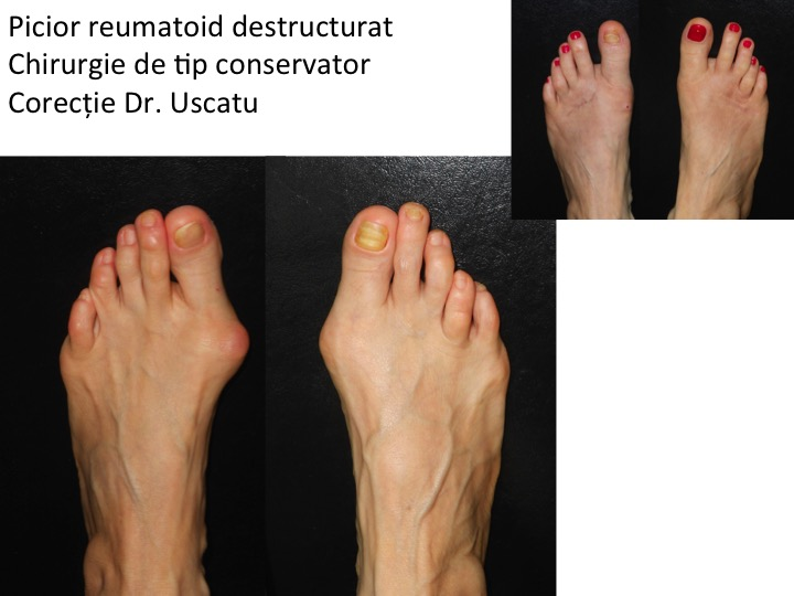 cauze psihologice ale artrozei genunchiului durere acută în articulația cotului