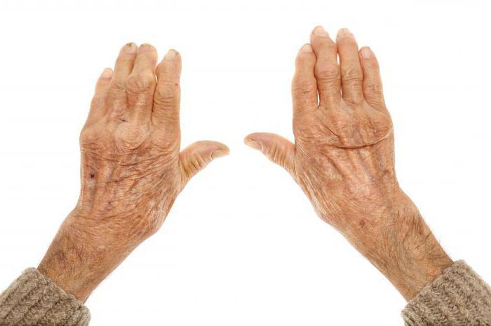 modul de restaurare a preparatelor de țesut cartilaj articulațiile degetelor și degetelor de la picioare