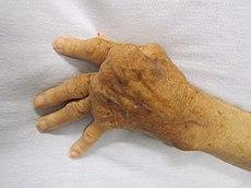 grade de disfuncție articulară în artrita reumatoidă tratamentul artritei traumatice a degetelor