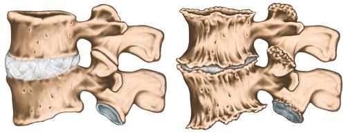 tratamentul chirurgical al artrozei articulare gradul de deteriorare a genunchiului