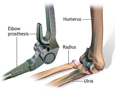 durere inghinală în inghinal complex de glucozamină condroitină pentru artroză