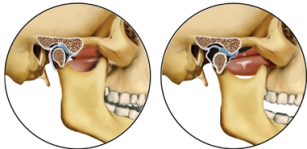 toata coloana vertebrala si articulatiile doare reparație articulară glucozamină