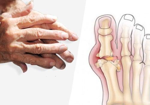artrita perie modul de tratare