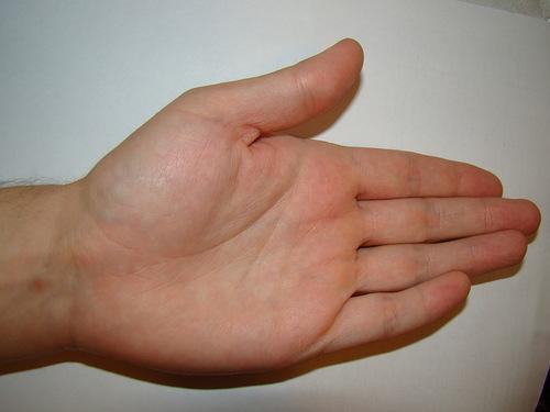 cum se tratează îngroșarea articulațiilor de pe degete