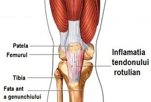 cum să trateze tendoanele genunchiului artrita boala cum să tratezi