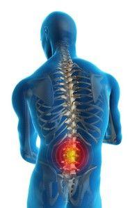 Tratamentul artrozei în Slovenia