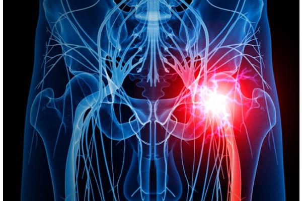 tratamentul coxartrozei preparatelor de șold inflamația articulației pe încheietura mâinii
