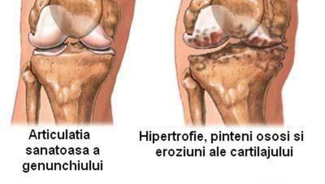 artrita genunchiului nu trece produse pentru tratamentul artrozei