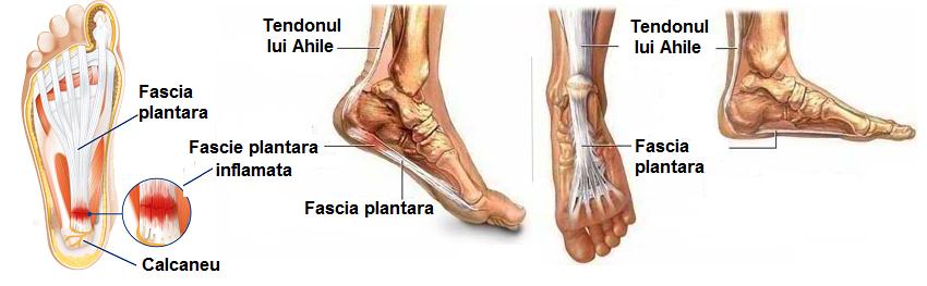 articulația inflamată pe tratamentul piciorului