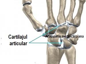 afectarea articulațiilor fătului modificări ale articulațiilor cu artroza