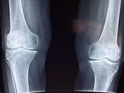 artrita genunchiului nu trece remediu eficient pentru durerea articulației șoldului