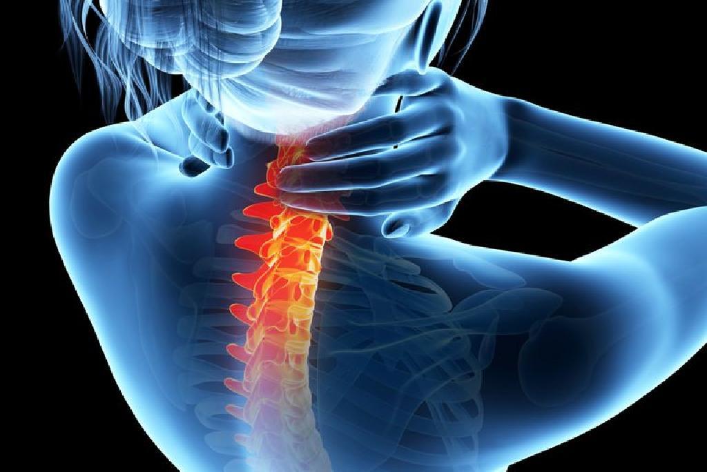 artroza articulațiilor fațetei ale coloanei vertebrale