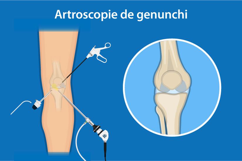 flexia genunchiului