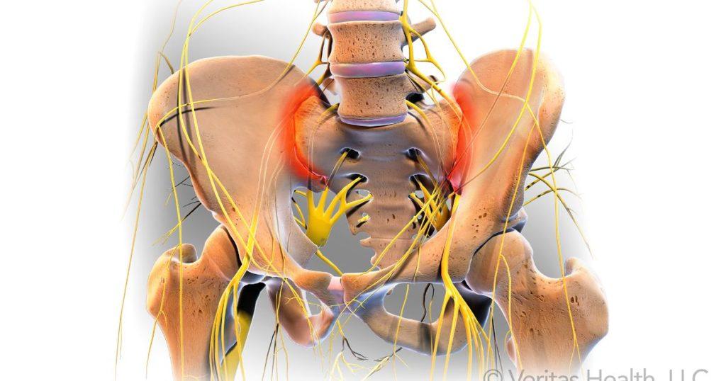 De ce rănesc articulațiile pelvisului, La apăsări, articulația umărului doare