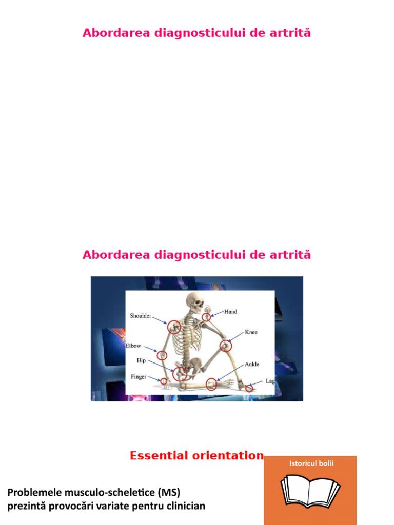 boli ale articulațiilor și țesuturilor moi tablete de diclofenac pentru dureri articulare