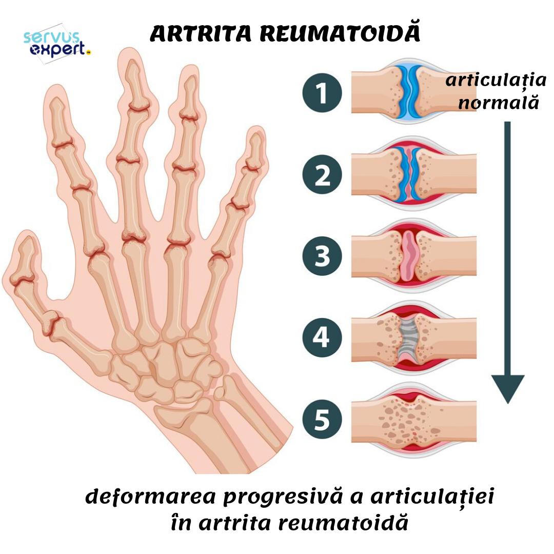 articulații dureroase ale degetelor