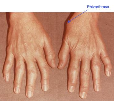 durere articulară a diagnosticului degetelor mari vitamine pentru tratamentul artrozei